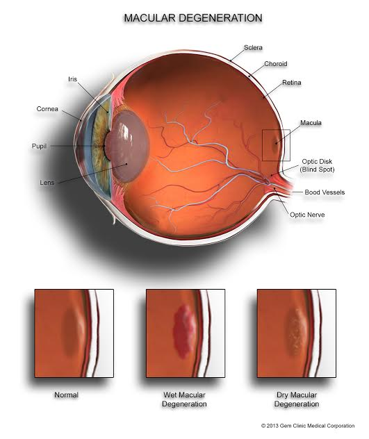 macular degeneration natural treatments