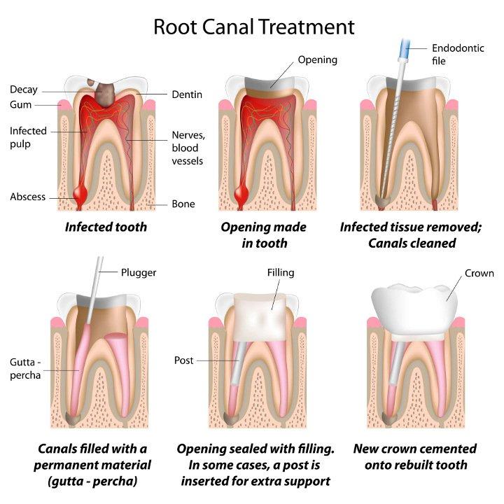 teeth_root_canal_chart_730