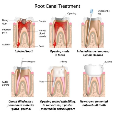 teeth_root_canal_chart_730